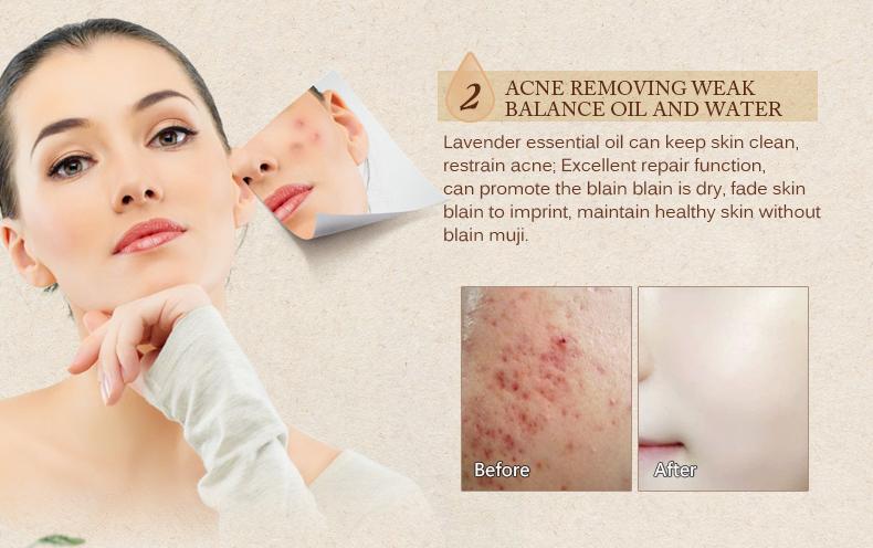 Buy Scar Repair Skin Essential Oil Lavender Essence Skin Care