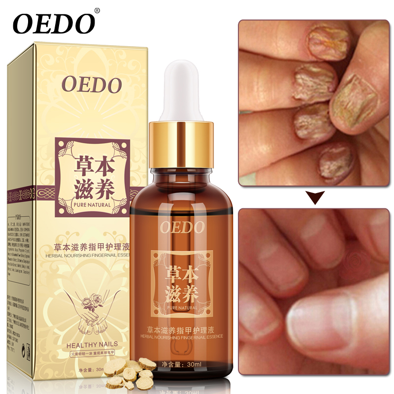 Buy Herbal Fungal Nail Treatment Essential oil Hand and Foot ...